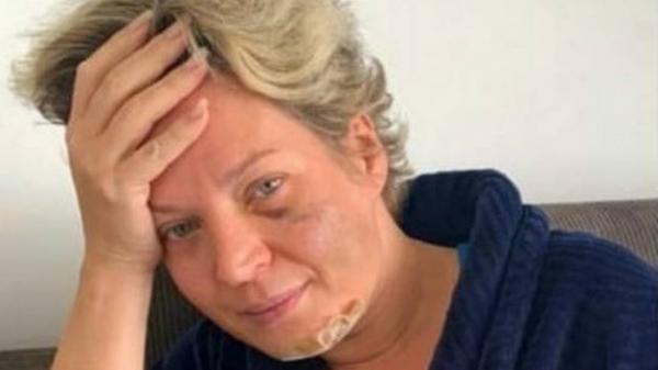 Polícia não descartou que marido possa ter agredido Joice Hasselmann.